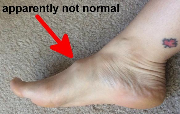 foot bump